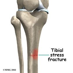 Tibial-stress-fracture