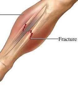 Leg-fracture