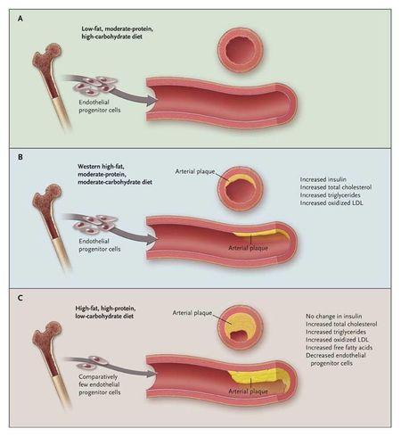 Arteries on three diets